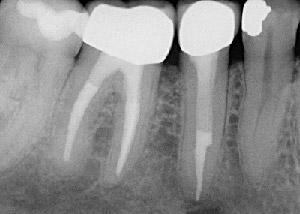 Wurzelbehandlung sich grau zahn verfärbt nach Wie ein